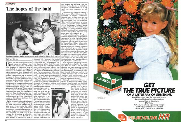 Article Preview: The hopes of the bald, June 1985 | Maclean's