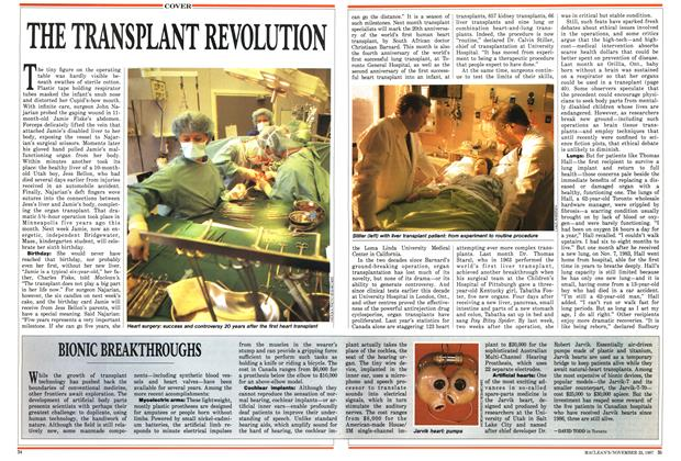 Article Preview: THE TRANSPLANT REVOLUTION, November 1987 | Maclean's